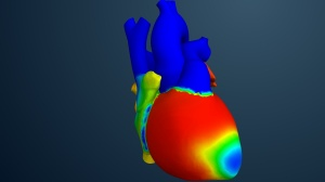 Living Heart Simulation
